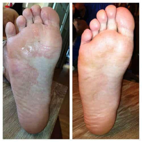 crema naturista ciuperca piciorului