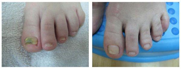 micoza unghiei tratament inainte dupa
