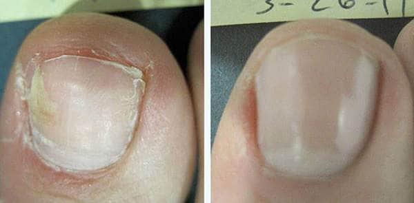 pareri tinedol tratament ciuperca unghiei