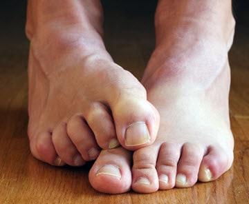 tratament ciuperca piciorului onicomicoza