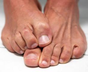 A fost găsită o metodă pentru tratamentul rapid al onicomicozei